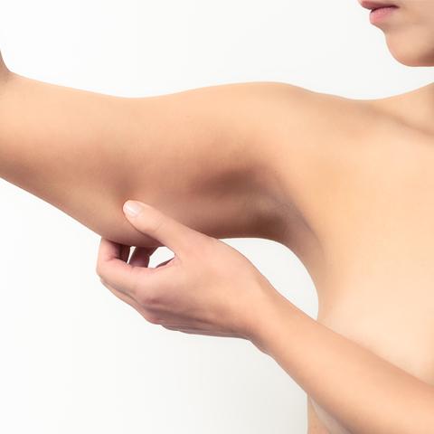 Lipoglaucin - risultato se applicato nelle braccia